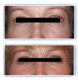 Excédent de peau au niveau des paupières supérieures (dermatochalasis) et excédent mixte cutané et graisseux au niveau des paupières inférieures: blepharoplastie supérieure et inférieure réalisée sous anesthésie locale pour rafraichissement naturel du regard
