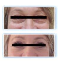 Résultat d'une chirurgie esthétique des paupières traitant l'exces de peau au niveau des paupieres supérieures et les poches graisseuses sous les yeux avec l'excédent du peau au niveau des paupieres inférieures