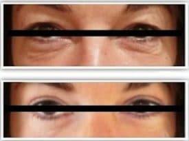 Photo avant/après d'une blépharoplastie supérieure et inferieure pour rajeunissement naturel du regard: traitement des paupières tombantes et par des poches graisseuses qui donnaient un regard fatigué