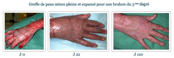 Brûlure du 3ème degré de la main, traitement par greffe de peau mince