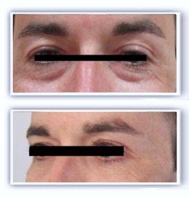 Photos avant/après d'une chirurgie esthétique des paupières inférieures chez un homme (voie conjonctivale) : le retrait des poches graisseuse s'est fait sans cicatrice visible