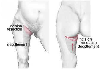 cicatrice horizontale de lifting des cuisses