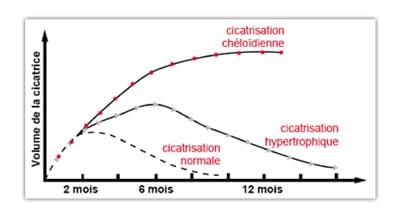 Evolution de la cicatrisation normale et des cicatrices pathologiques (hypertrophiques, chéloides) - source Latarjet, Echinard
