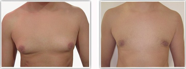 Gynecomastie graisseuse pure traitee par liposuccion