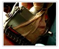 Prélevement de peau sur le cuir chevelu en vue d'une greffe