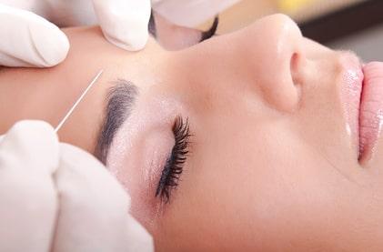 Précautions avant l'injection de Botox
