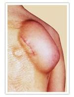 Prothèse d'expansion cutanée pour correction de cicatrice de brûlure