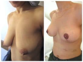 Résultat à 3 semaines d'une opération pour correction de ptose à cicatrice en T inversé.