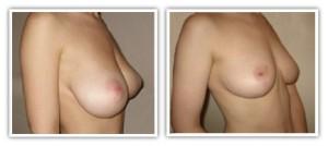 Réduction mammaire avant/après