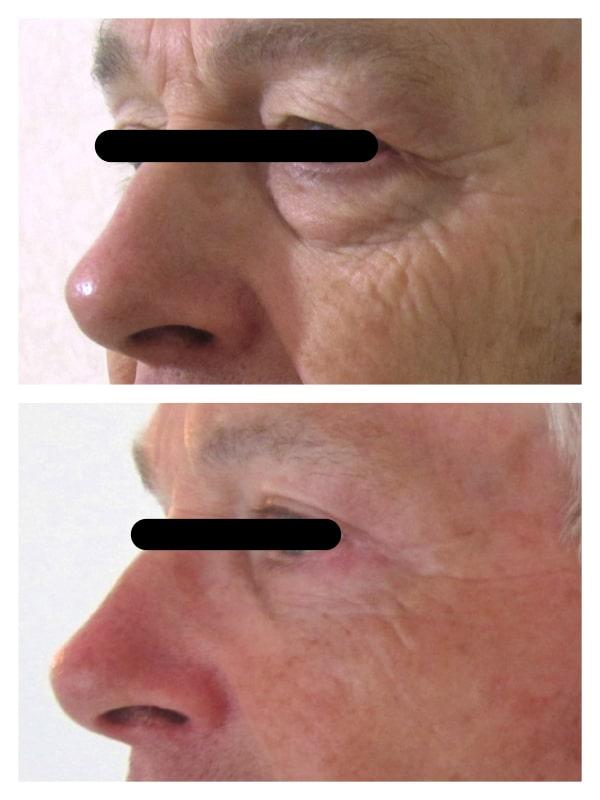 Résultat d'une chirurgie esthétique des paupières chez un homme: blepharoplastie supérieure traitant les paupières tombantes et une blépharoplastie inférieure (retrait des poches graisseuses)
