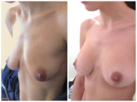 Résultat d'une correction de ptose mammaire à volume égal