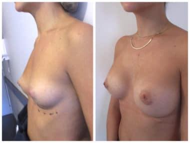 Seins tubéreux (avec protrusion aréolaire) traités implants ronds de 330cc en Dual Plan