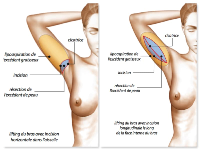types-cicatrices-lifting-bras