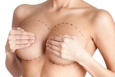 Choisir la taille des implants mammaires