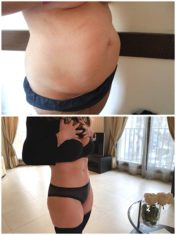 abdominoplastie avec liposuccion du ventre