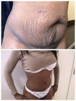 Resultat abdominoplastie avec correction diastasis et liposuccion du ventre