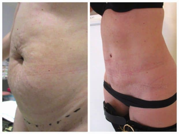 Photo de résultat avant/après d'une chirurgie esthétique du ventre: abdominoplastie