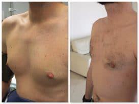 correction d'adipo-gynécomastie traitant l'excédent glandulaire et graisseux de manière définitive
