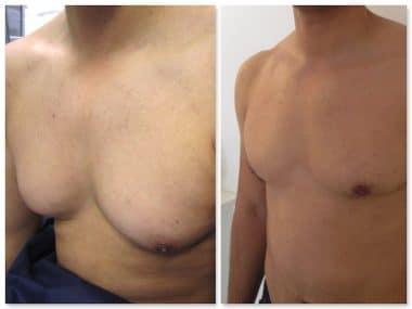 Résultat avant après d'une hypertrophie de la poitrine chez un homme à prédominance graisseuse: adipomastie