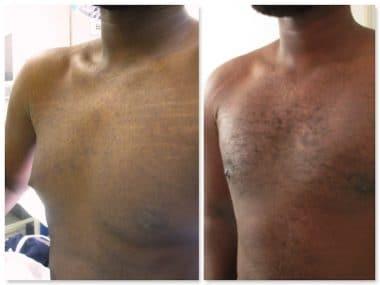 Résultat d'un traitement de gynécomastie et d'adipomastie bilatérale