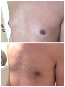 Photo de résultat d'un correction d'adipomastie avec retrait de la glande en arrière de l'aréole responsable d'une turgescence aréolaire