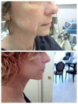 Résultat d'un lifting du visage cervico-facial chez une femme souhaitant un rafraichissement de son visage
