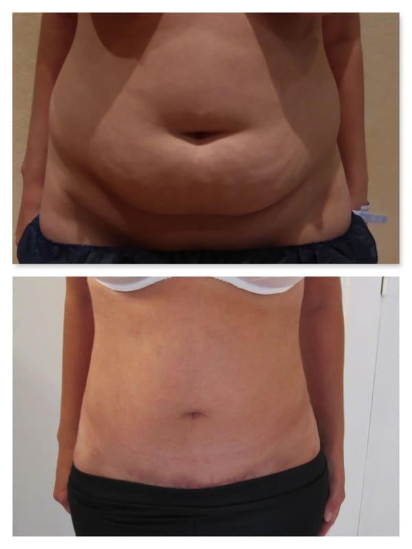 Résultat d'une abdominoplastie avec lipoaspiration après amaigrissement