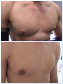 aspect de la cicatrice au 5 eme jour d'une correction de gynecomastie modérée (turgescence aréolaire)