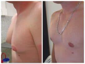 Adipo-gynecomastie traitée par lipoaspiration et retrait du noyau glandulaire