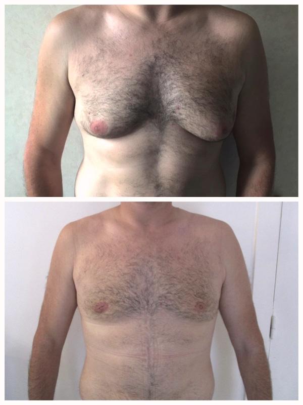 Résultat avant après gynecomastie sans cicatrices transversales