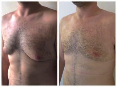 Résultat à 3 semaines d'une correction d'adipo-gynécomastie bilatérale sans cicatrices transversales