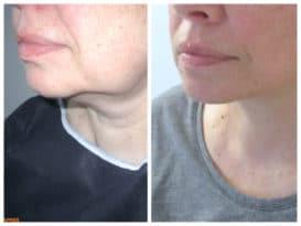 Résultat avant-après d'un lifting du bas du visage chez une femme traitant le relâchement. Un lifting localisé de restaurer l'ovale et l'angle du cou pour un résultat naturel