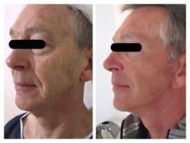 Résultat avant/après d'un lifting cervico-facial chez un homme avec blepharoplastie supérieure et inférieure pour un rajeunissement global du visage