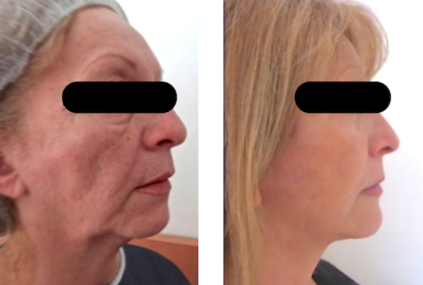 Un lifting temporo-jugo-cervicale traitant un visage fatigué: relâchement du visage, , bajoues et du cou, avec liposuccion du cou et lipofilling des joues