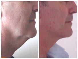 Résultat d'un lifting du visage chez un homme avec liposuccion du cou traitant le double menton et les bajoues