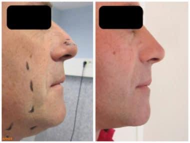 Résultat avant/après mini-lifting du visage chez un homme avec lipoaspiration du cou en raison du double menton et rhinoplastie