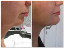 Résultat d'un lifting du bas du visage (mini-lifting localisé) qui a permis de traiter l'ovale