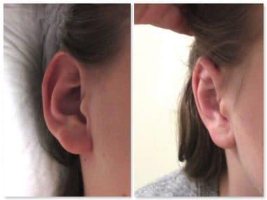 otoplastie traitant hypertrophie cartilage conque