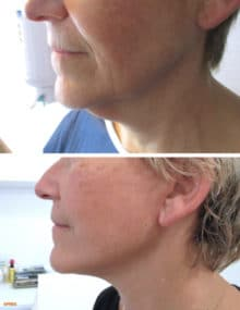 Resultat à 10j, la cicatrice deviendra de plus en plus discrète au fil des semaines