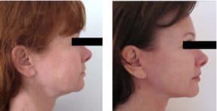 Photo avant après d'un lifting du visage chez une femme de 50 ans