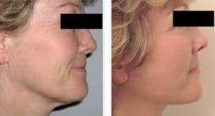 Photo avant/après d'un lifting du visage chez une femme traitant le relâchement de la peau du cou et des joues