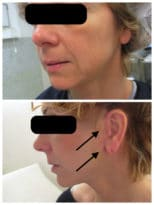 Lifting du visage chez une femme avec aspect des cicatrices