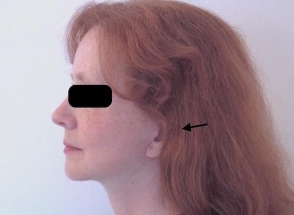 Résultat précoce chez une femme d'un lifting cervico-facial superficiel traitant les bajoues et le cou