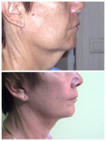 Affaissement cervical responsable d'un double menton : résultat d'un lifting
