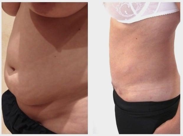 Résultat avant/après d'une mini abdominoplastie avec liposuccion du ventre