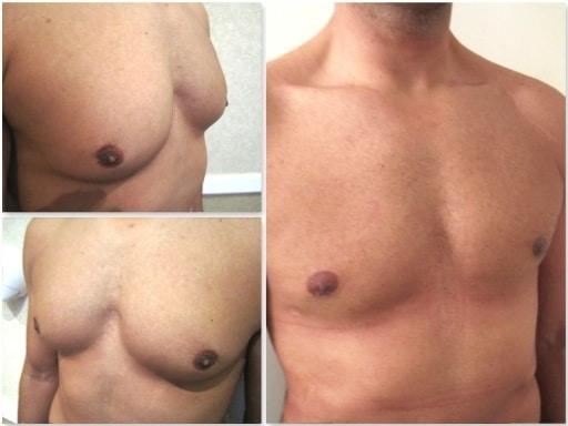 Resultat opération ayant traité la glande et la graisse