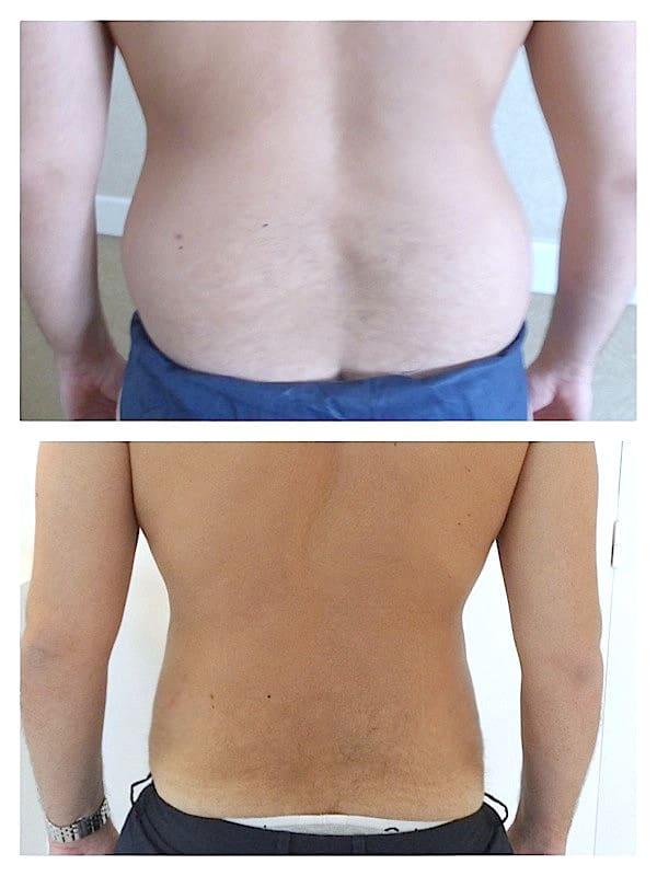 traitement-amas-graisseux-hanches