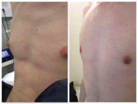 Résultat d'une operation traitant une gynecomastie modérée appelée turgescence aréolaire ou protrusion aréolair