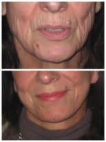 Résultat relâchement cutané d'un visage fatigué corrigé par lifting jugo-cervical superficel sans tension permettant une rajeunissement naturel