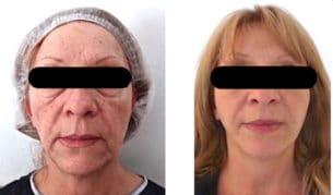 Résultat avant/après chez une femme d'un lifting d'une patiente qui se plaignait d'un visage relâché et fatigué avec lipofilling des joues et des pommettes